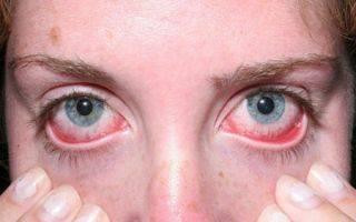 Cимптомы и методы лечения язвы роговицы