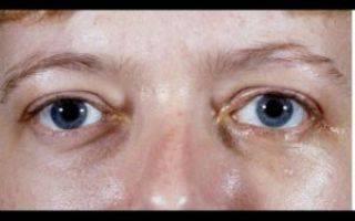 Боль возле глаза ближе к носу. боль в уголках глаз