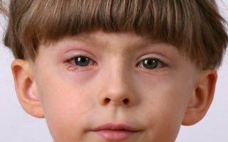 Капли ципрофарм для глаз