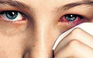 Всегда ли после 55 лет начинают слезиться глаза? причины и лечение у пожилых людей