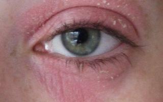 Что делать если верхнее веко глаза шелушится: устранить причину самостоятельно или срочно обращаться к офтальмологу?