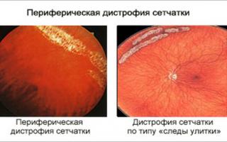 Пхрд глаза: в чём опасность, как лечить?