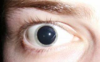 Стеклянные глаза у человека