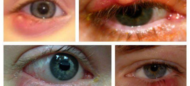 Причины возникновения халязиона