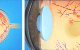 Тромбоз глаза
