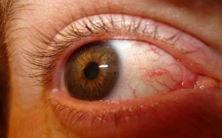Комплекс упражнений для снятия напряжения глаз