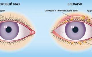 Эффективность японских капель для глаз rohto