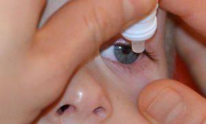 Блефароконъюнктивит глаз и его лечение