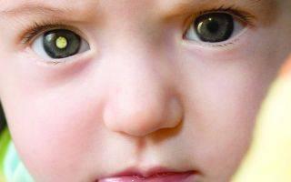 Рак сетчатки у детей и основные симптомы ретинобластомы глаза