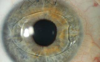 Расчёт интраокулярных факичных линз (встраиваемых в глаз)