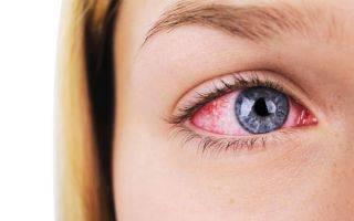Биомикроскопия глаза что это показания как проводят
