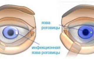 Капли ципрофлоксацин