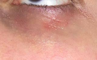 3 причины красных пятен вокруг глаз и 18 способов лечения