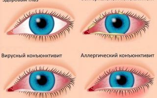 Причины гиперемии конъюнктивы