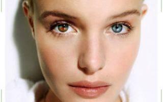 Двухцветные глаза у людей. причины возникновения, опасно или нет с медицинской точки зрения