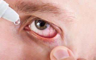 Синдром сухого глаза – проблема современного человека