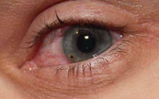 Что делать, если в глаз попала окалина от болгарки?