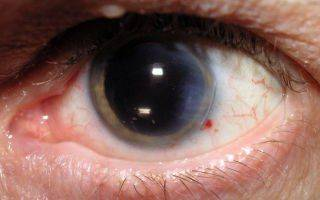 Вторичная катаракта после замены хрусталика