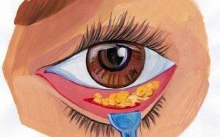 Почему появляются мешки под глазами. мешки под глазами жировые, грыжевые. как убрать грыжевые мешки под глазами