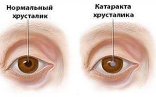Все о катаракте