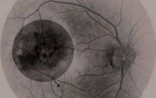 Меланома и невус хориоидеи глаза: симптомы, лечение, прогноз