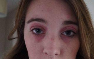 Эффективные способы избавления от синяков в уголках глаз