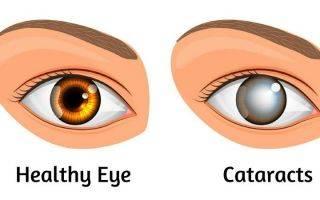 Во сколько месяцев изменяется цвет глаз у младенцев?