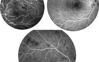 Флуоресцентная ангиография сетчатки