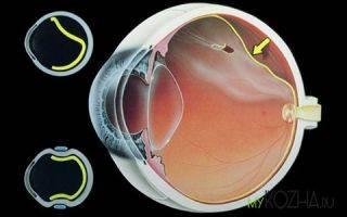 Лечение и первая помощь при химическом ожоге глаза