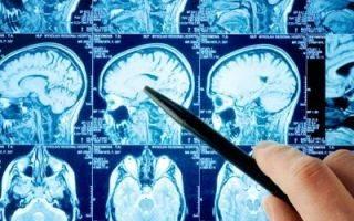 Опасные последствия рассеянного склероза: что будет, если его не лечить?