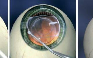 Замена хрусталика глаза. операция и последствия