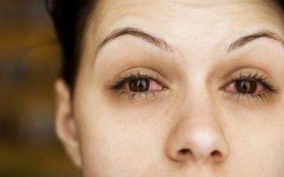 Светобоязнь глаз
