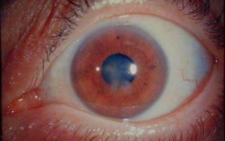 Заболевания роговицы глаза