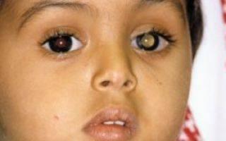 Ретинобластома: клиника, диагностика и лечение