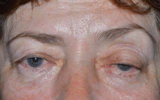 Лагофтальм (заячий глаз, феномен белла при поражении лицевого нерва)