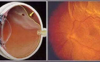 Чем грозит отслоение сетчатки глаза? виды, симптомы, методы диагностики и лечения