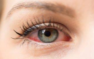 Глазные капли «айсотин»: отзывы врачей, состав и инструкция по применению