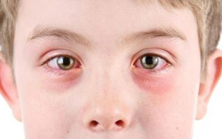 Аденовирусный конъюнктивит: лечение у детей