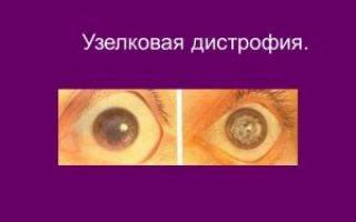 Что вызывает дистрофию роговицы глаза, как проходит лечение