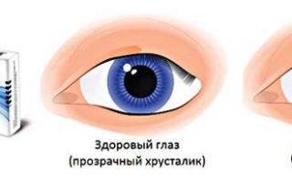 Можно ли капать тауфон на контактные линзы?