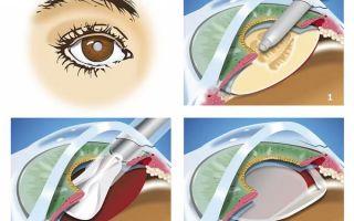3 причины сделать артифакию глаза