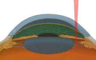 Лазерная гониопунктура: описание операции