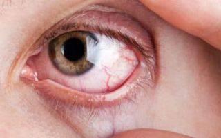 Глазная мазь виролекс