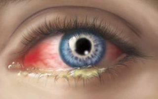 Закисает глаз у взрослого лечение капли