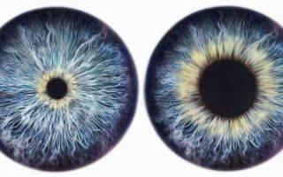 Как проверить сетчатку глаз