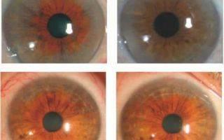Кератопатия глаза