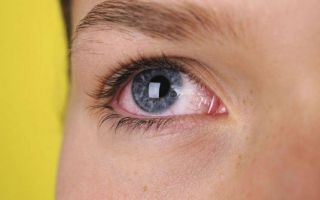 Что нужно знать об аллергии на глазах: виды, причины и лечение