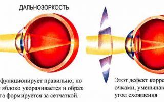 Особенности профилактики дальнозоркости