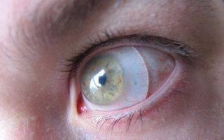 Современный тренд оптической продукции: особенности и применение склеральных линз