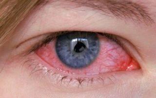 Воспаление глаза – виды, симптомы, лечение